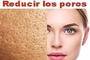 Maneras naturales de reducir sus poros 11